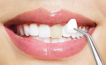 veneer dentists
